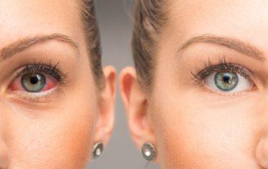 Eye Trauma, Ocular Trauma in Humble, TX